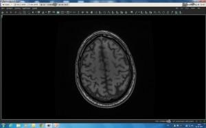 MR scan brain 3